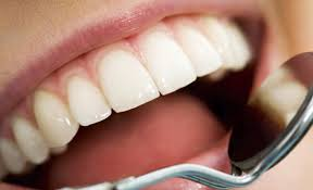 Scottsdale's Dentist does Tooth Extractions
