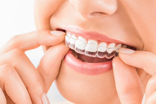 Affordable clear and invisible braces dentists in Scottsdale, Arizona