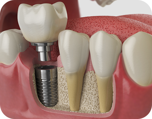 Dental Implants done at Scottsdale's Dentist