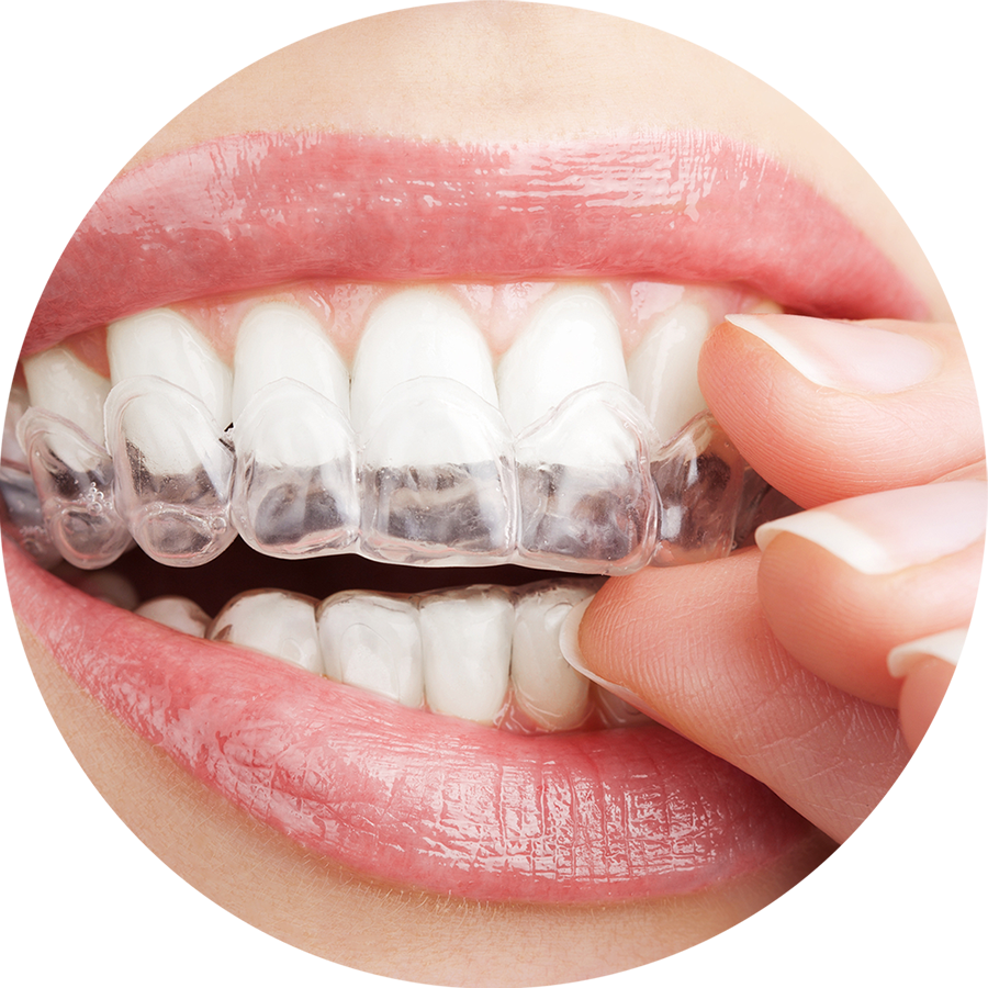 Clearcorrect Braces Dental Clinic Located In Scottsdale AZ